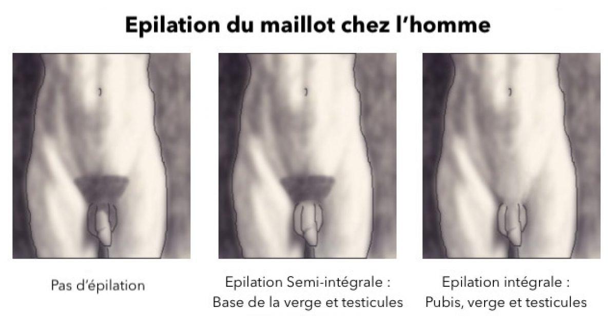 Epilation Pubis Homme